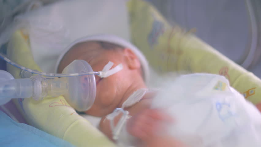 Close up of an unrecognizable new born premature baby in incubator. 4K.