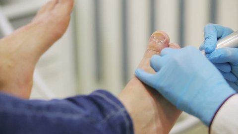 hands of the physician of the podologist in blue gloves make a hardware pedicure of male legs in the medical office, close-up