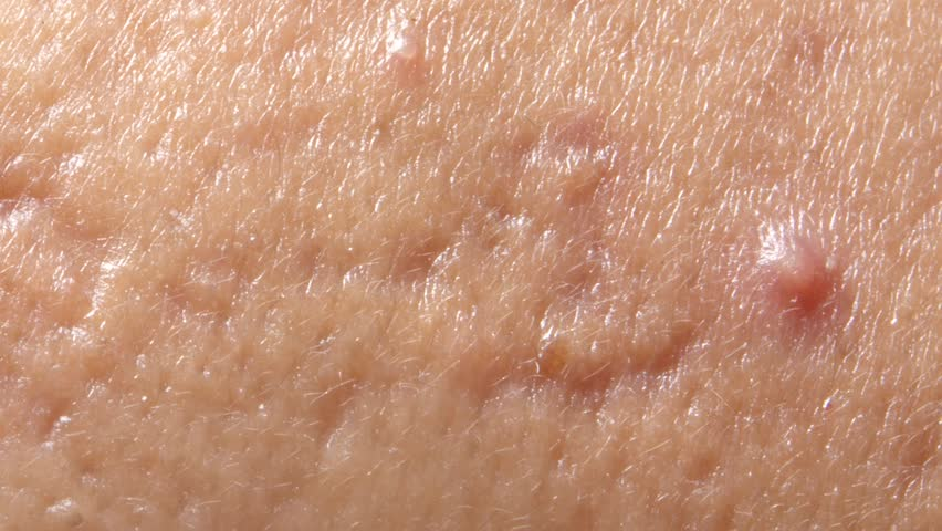 Spherical cystic acne on the skin. The concept of dermatology | Shutterstock HD Video #1008707557