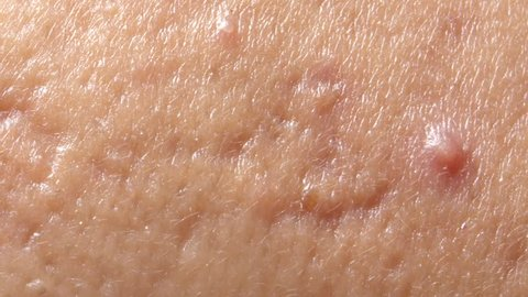 spherical cystic acne on the skin. The concept of dermatology