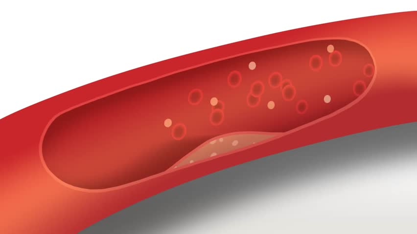 Atherosclerosis: Cholesterol plaque forms in artery, ruptures, blood clot forms and artery blocked