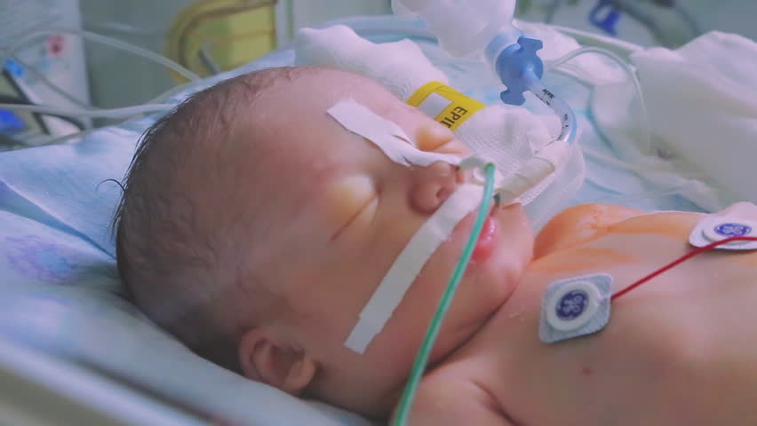Newborn baby lying in an incubator in intensive care in the hospital