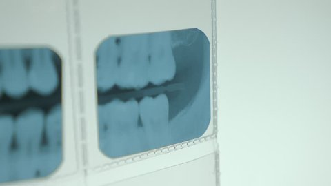Close up view of dental x-ray results taken by an specialized xray camera.