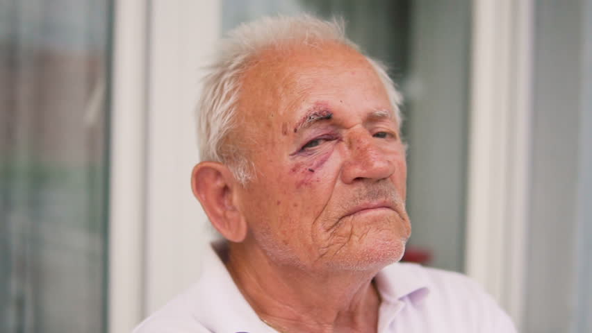 Seniors portrait, eye injured old caucasian man staring at camera, SLOW MOTION | Shutterstock HD Video #1013487377