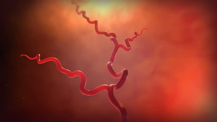 A blood vessel bursting
