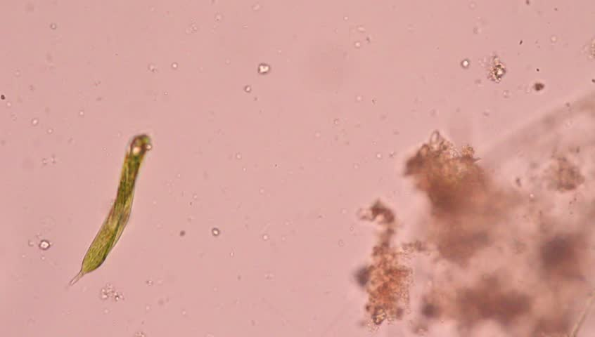 Euglena under microscope view. Euglena is a single-call flagellate.