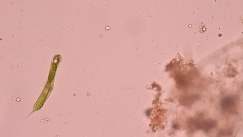 Euglena under microscope view. Euglena is a single-call flagellate.