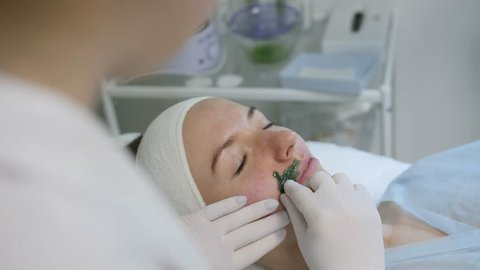 Cosmetologist makes hot wax epilation and removes facial hair on young woman face