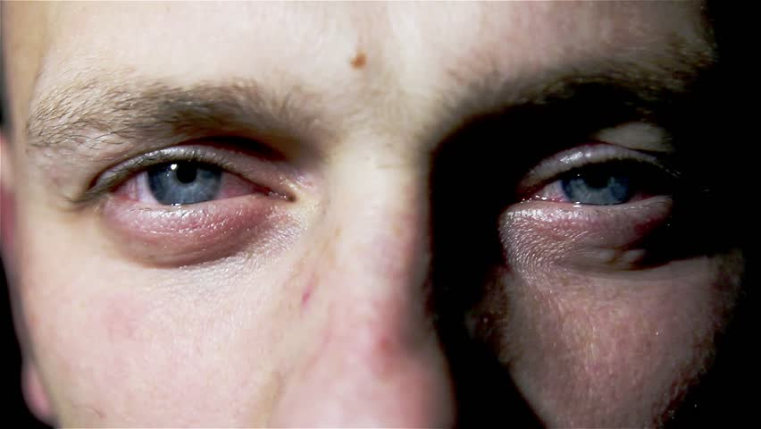 8eb85418466 Tired Man Suffers from Conjunctivitis