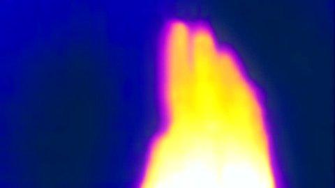 Thermal Imaging Of Hand Main