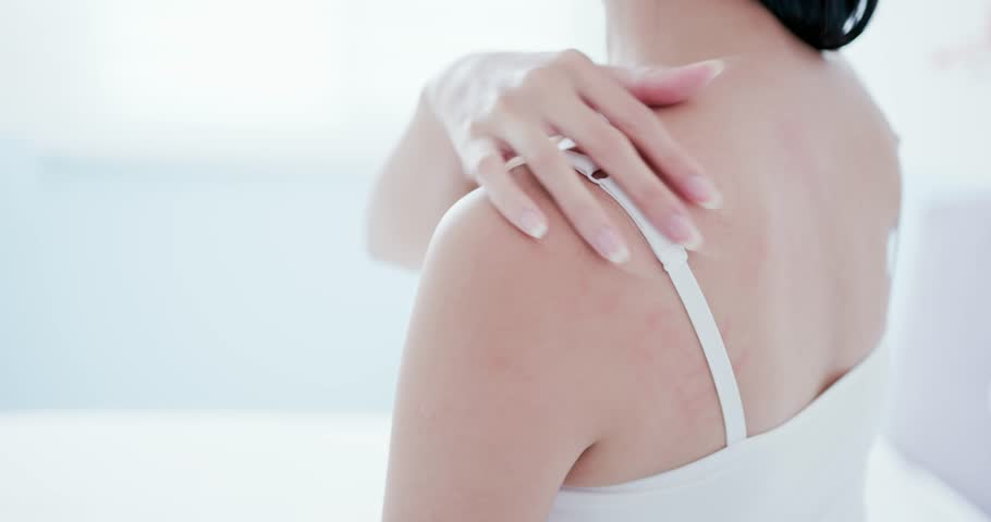 Woman scratching her shoulder and neck because of dry skin at home   Shutterstock HD Video #1019289367