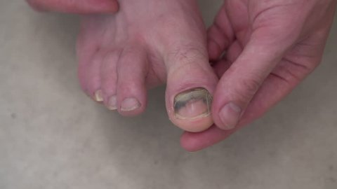 A close up shot of a man examining his toenail which is starting to come off following an accident.
