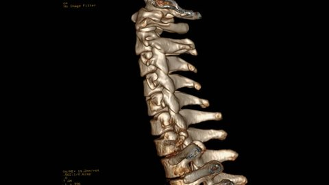 CT SCAN  3D of Cervical  Spine or CT C-spine  Rotating on the monitor . Medical technology concept.