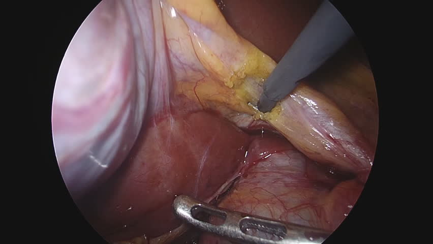 Doctors use endo-instruments and video cameras to perform surgery in the abdominal cavity of a fat woman.Modern advances in medicine.Endoscopy.