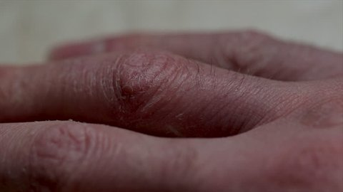 Fingers close up with dry damaged cracked skin. Close up human hands with dry skin trauma. Cold weather skin damage. Dermatologist doctor. Itching broken skin caused by Eczema.