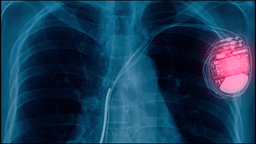 X-ray footage pacemaker cell, electrically charged medical device for abnormal heartbeat | Shutterstock HD Video #1027115837