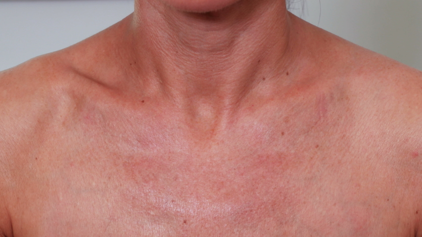 Woman Applying Self Tanning Lotion on around her neck | Shutterstock HD Video #1031315297
