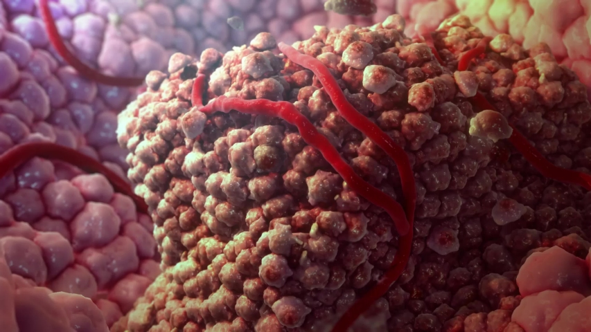 The T cells kill cancer cells. They additionally destroy the tumour blood vessel system, thus impeding the supply of nutrients to the tumour. | Shutterstock HD Video #1032087437