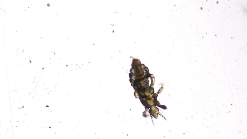 Macro shot of Head lice (louse) on white background