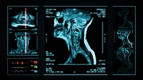 Neck MRI Scan. Blue. 3 videos in 1 file. Animation showing top, front, lateral view and ECG display. Each video is loopable. Medical Background. More options in my portfolio.