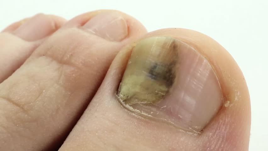 Sick Nail Fungus Of Toe Trauma Toenail Fungi Toes Bruise Under The Injury To Subungual Hematoma