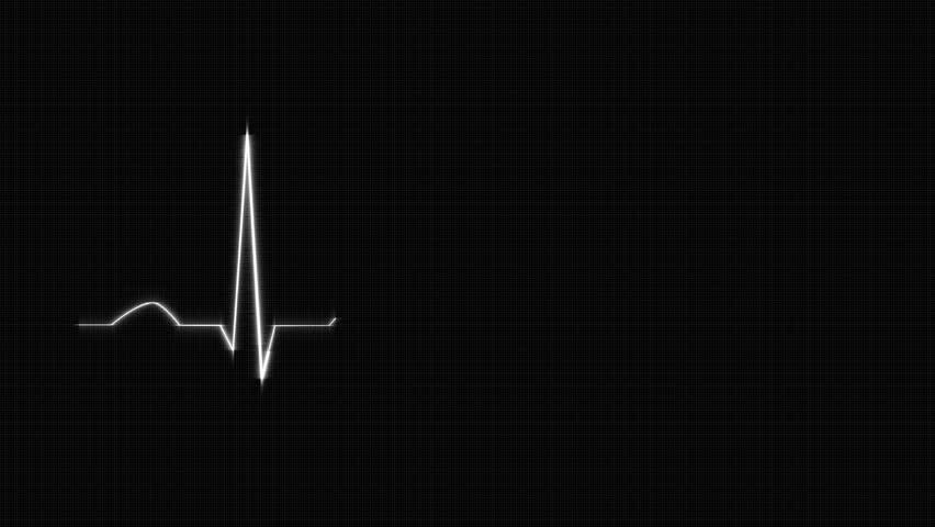 Abstract heart beat chart ? Stock Vector ? rioillustrator #16825105