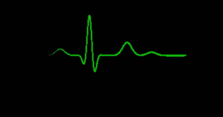 Loopable: EKG Machine. Green digital pixelated ECG monitor shows healthy heart beat. Seamless loop. (av23253c)