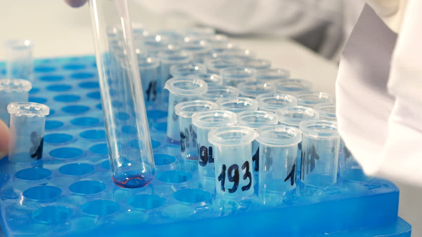 Lab technician scientist performs medical clinic chemical analysis and diagnostics using test tube phial and pipette. 4K UHD video footage. | Shutterstock HD Video #15149407