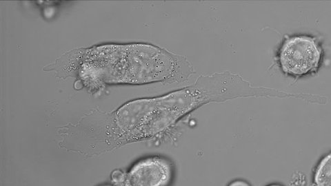 PC-3 human prostate cancer cell in culture, microfilaments were disrupted by cytochalasin D