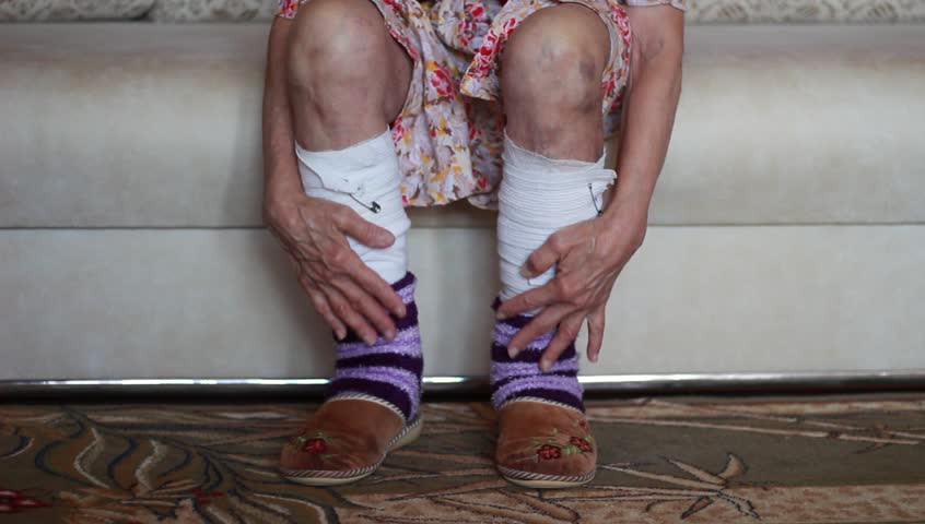Old woman's bandaged legs | Shutterstock HD Video #18490627