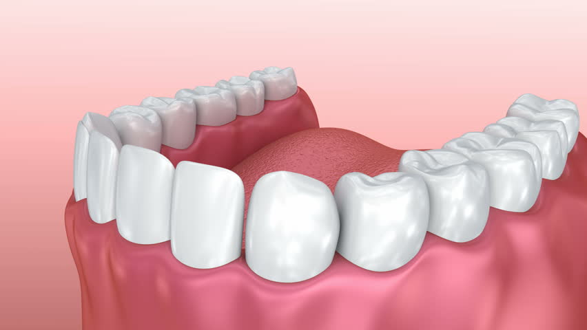Mouth gum and teeth. Medically accurate tooth 3D animation.