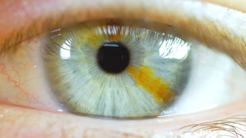 Human Eye Macro Close Up With Brown Birth Mark #22346167