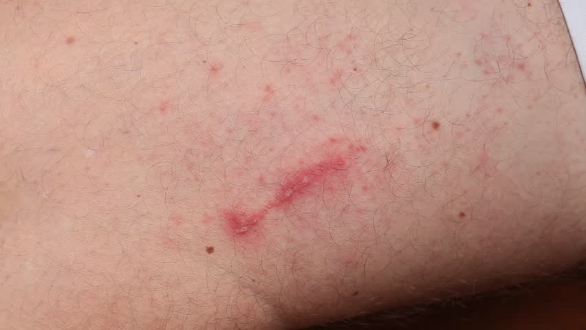 Irritant contact dermatitis at man leg, close up.. Pederus-dermatitis - Allergic reaction to the blood type of beetles Paederus, characterized by vesicular dermatitis. | Shutterstock HD Video #22455637