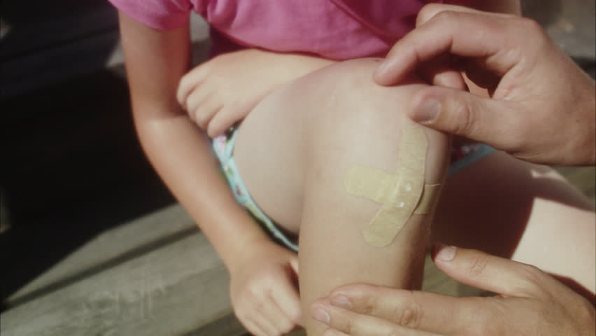 Father placing bandage on daughters knee