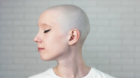 Portrait of a sad, depressed woman suffering from cancer turning head and looking into the camera