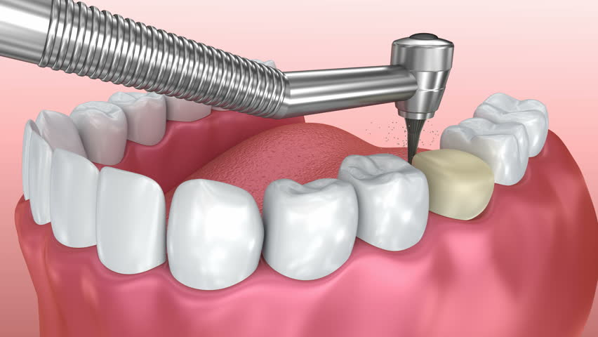 Dental crown installation process, Medically accurate 3d animation
