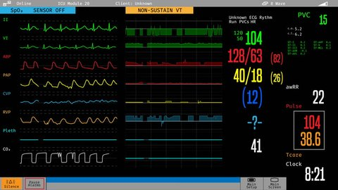ICU medical monitor showing sick patient's condition, hospital care, treatment. Medical ICU monitor with patient's vital signs