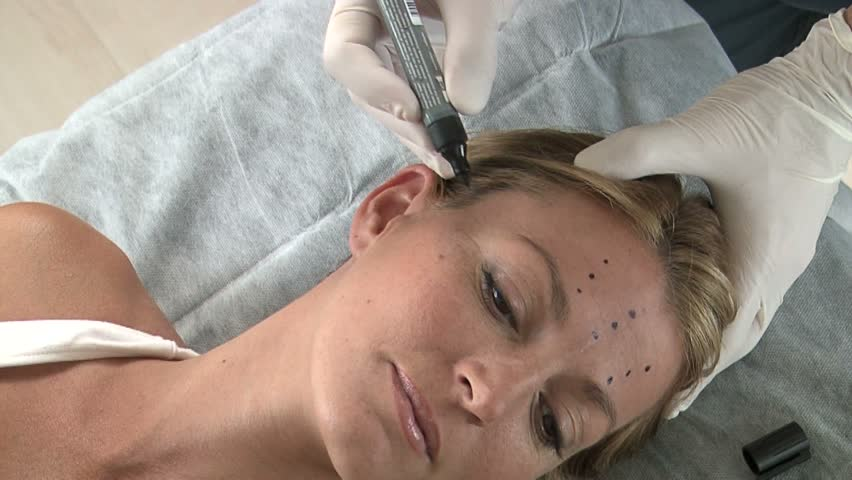 Surgeon marks dots on woman's crows feet
