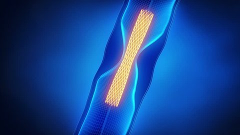 Angioplasty with stent catheter x-ray look