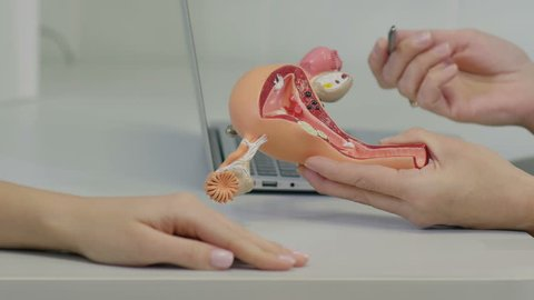Gynecologist doctor consulting patient using uterus anatomy model