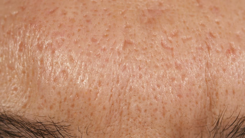 Scars from acne on the skin of a man