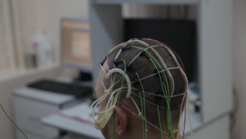 The doctor connects the electronic sensors with wires to the patient's head. Progressive medical technologies. Nanotechnology | Shutterstock HD Video #30132121
