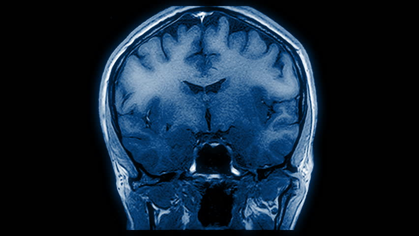 Computed medical tomography MRI upscaled scan of healthy young female brain. Front/rear view. Optically retimed for smooth motion. Blue/teal on black background. (av43854c) | Shutterstock HD Video #34825057