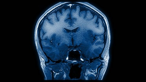 Computed medical tomography MRI upscaled scan of healthy young female brain. Front/rear view. Optically retimed for smooth motion. Blue/teal on black background. (av43854c)