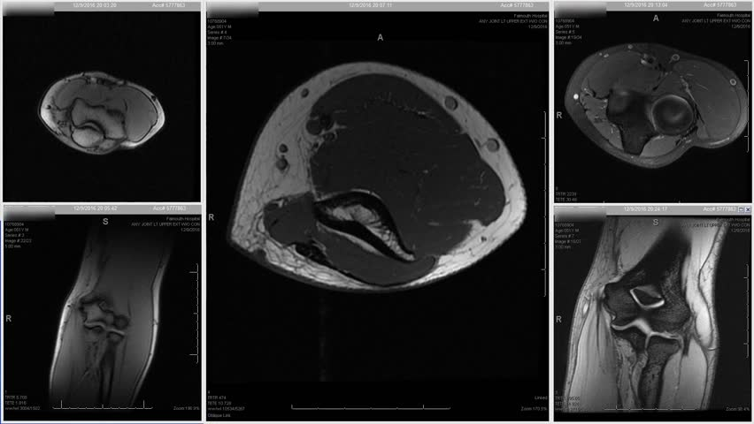 Grid of MRI elbow forearm images with looping upper left panel view from different angles, white on black background   Shutterstock HD Video #35020987