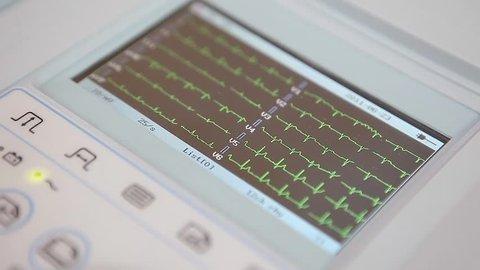 Cardiogram monitoring