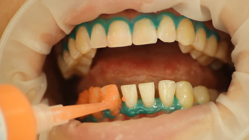 Teeth Whitening. Application of whitening gel to the teeth. stomatology