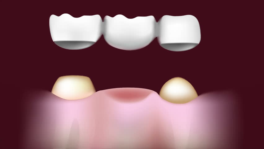 Header of dental