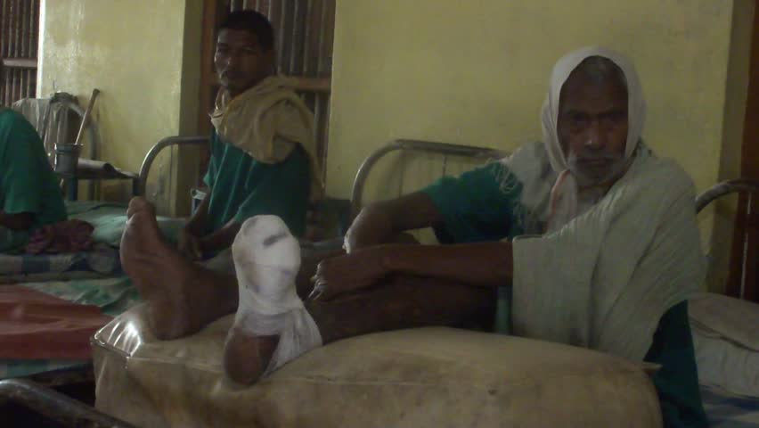 SUNDARPUR, INDIA-OCT 28: Local man in a leprosy hospital in Sundarpur, on 28th October 2011, in Bihar, India. Many of the people affected by leprosy have been isolated in remote villages in India.