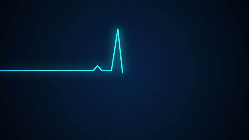 Ecg cardiogram monitor with pulsing blue line to determine your health with beep sound | Shutterstock HD Video #8442277